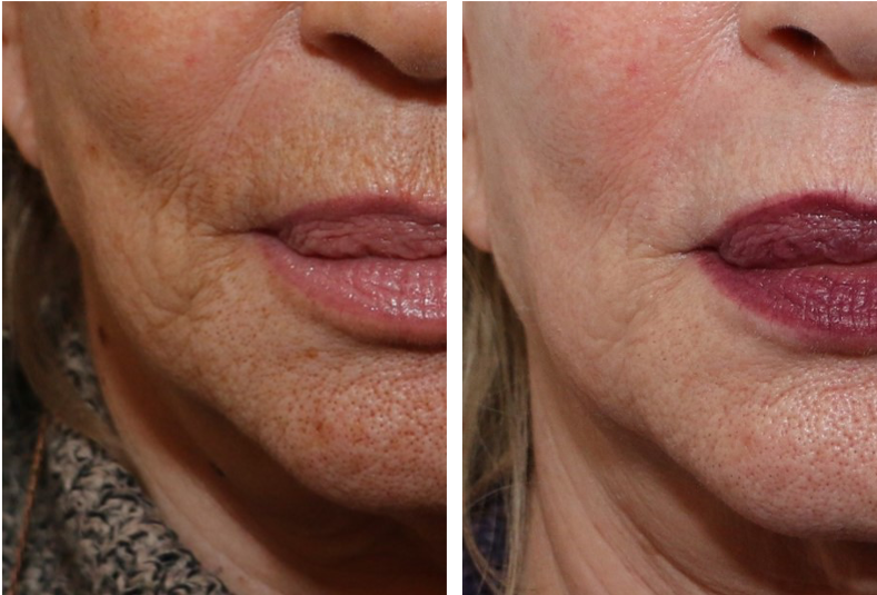 rides du visage - photo avant après traitement au laser du bas du visage