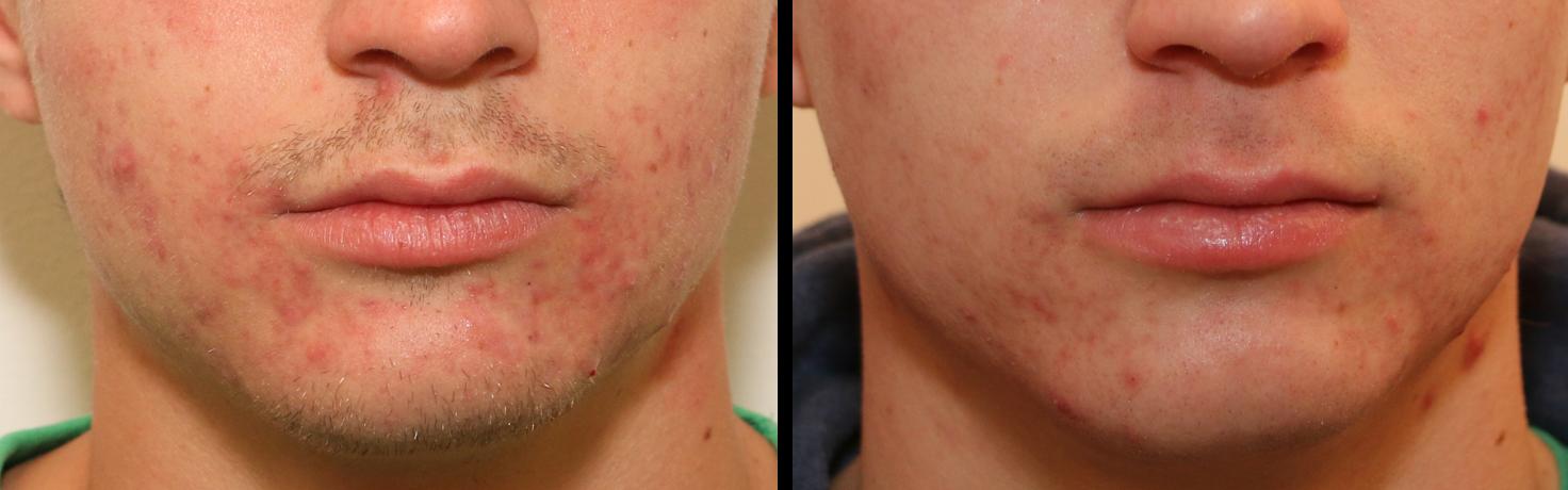 traitement contre l'acnée par le laser