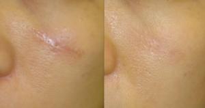 Réduire les cicatrices du visage