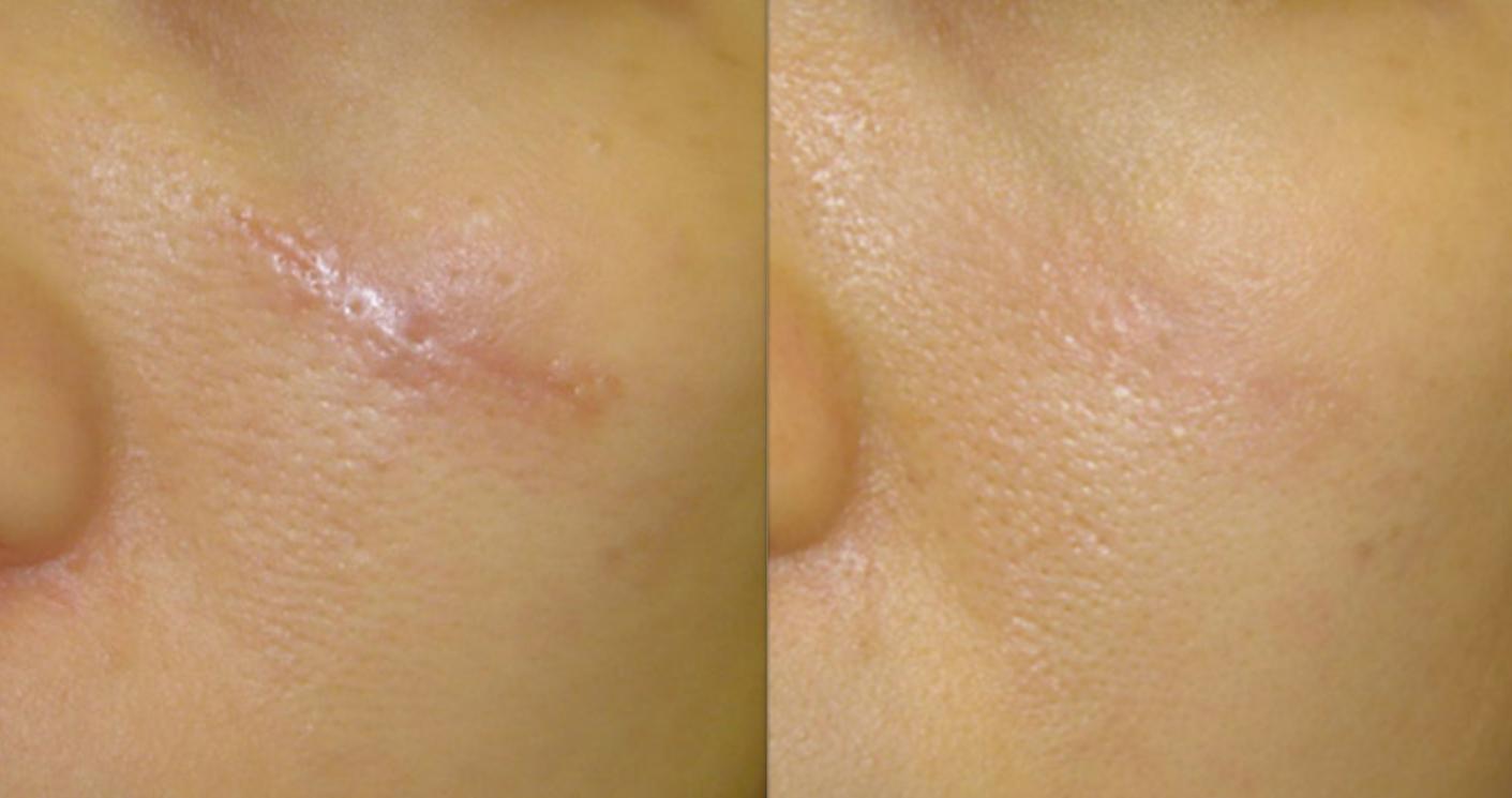 traitement des cicatrice avec le laser