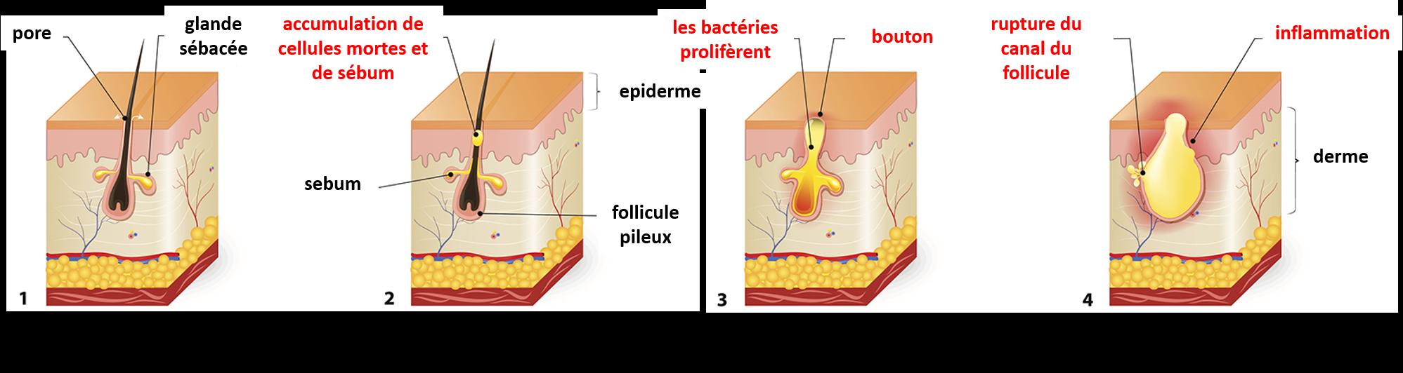 quatre schemas montrant le développement de l'acne