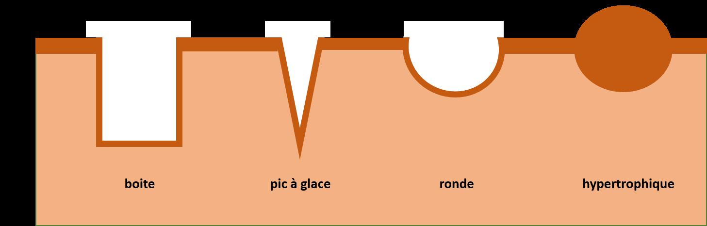 schéma montrant les différents types de cicatrices d acne