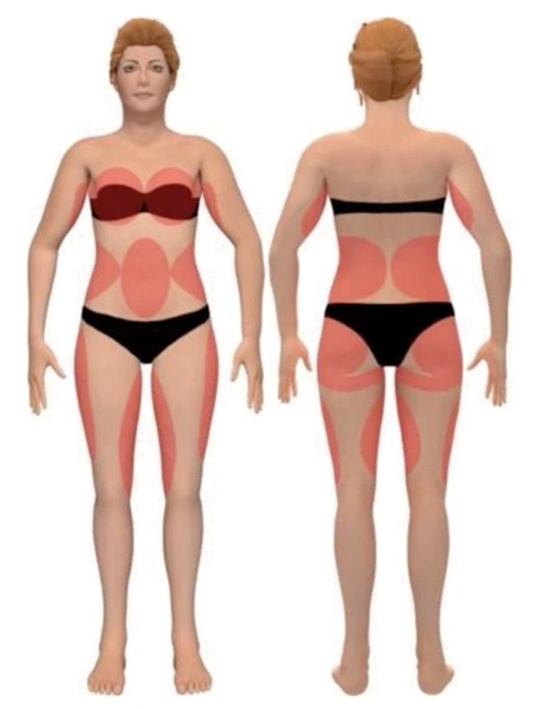 zones concernées par le relachement du corps