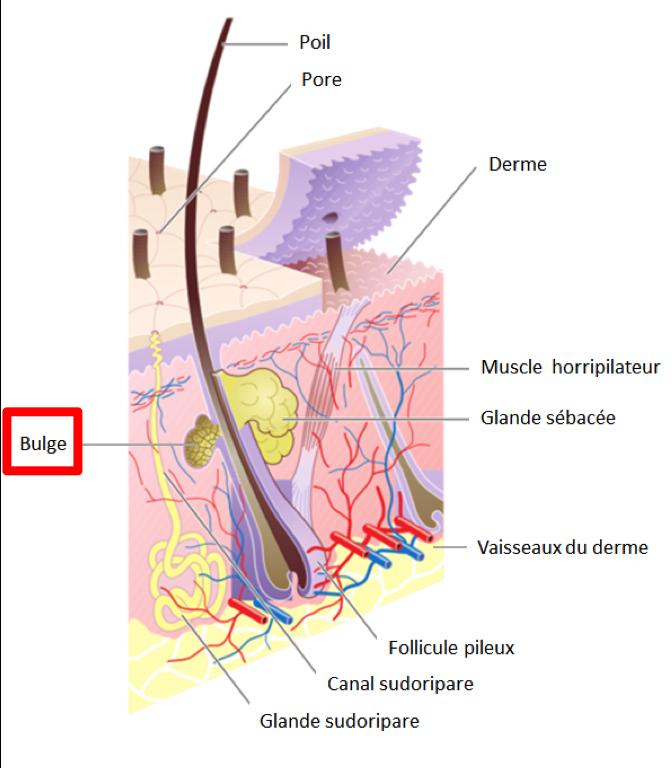 epilation definitive: coupe de peau avec racine du poil, vaisseaux autour, glandes sébacées et autres structures