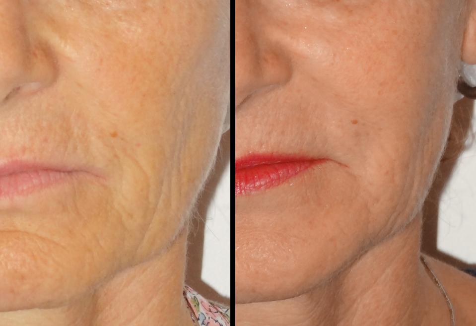 rides du visage - photos avant après injection d'acide hyaluronique des joues