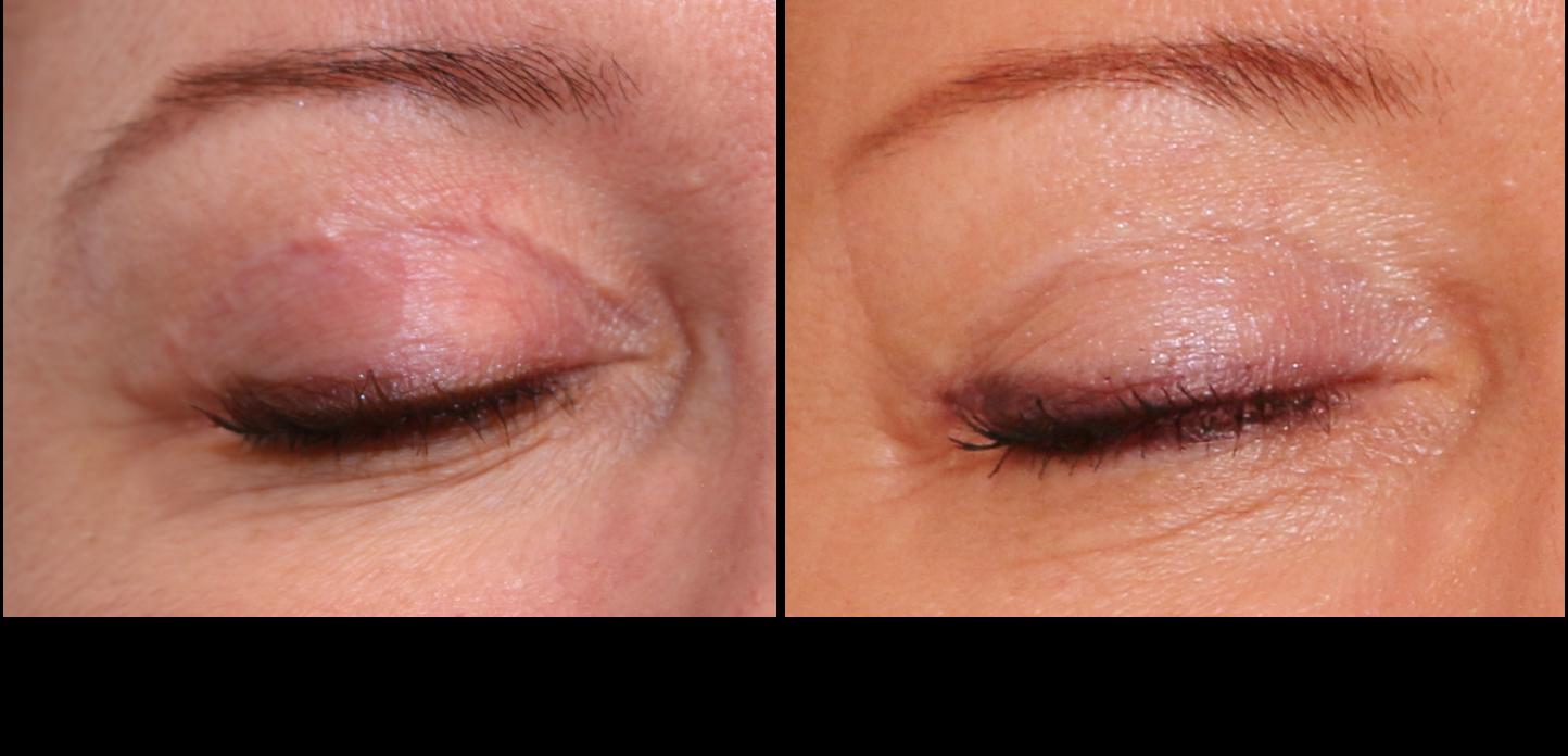 Comment Effacer Les Cicatrices Centre De Medecine Esthetique