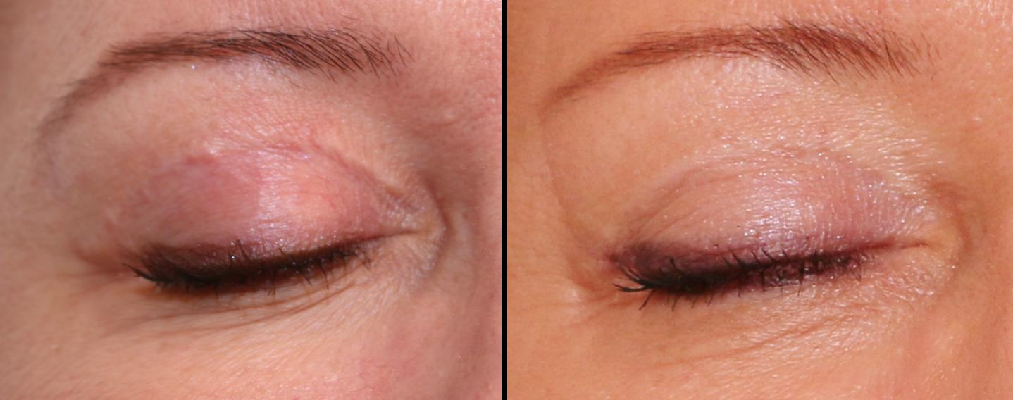 Traitement des cicatrices de blépharoplastie par le laser