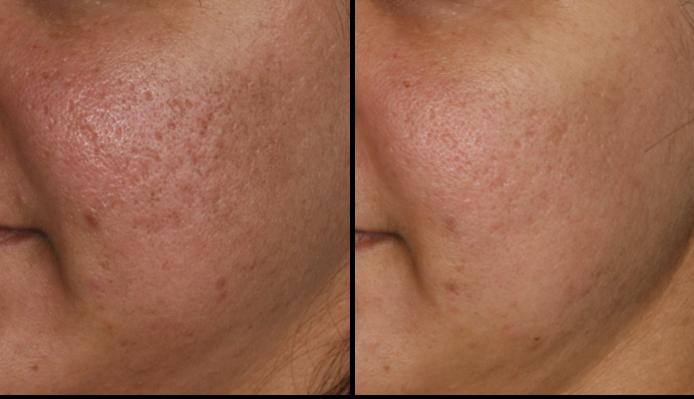 traitement des cicatrices d'acnée avec le laser