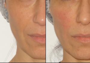traitement des rides du sillon naso-genien par les injections d'acide hyaluronique