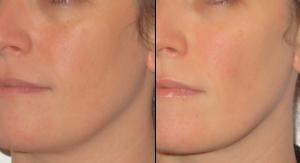 Photo avant-après d'injections d'acide hyaluronique contre le relachement du visage