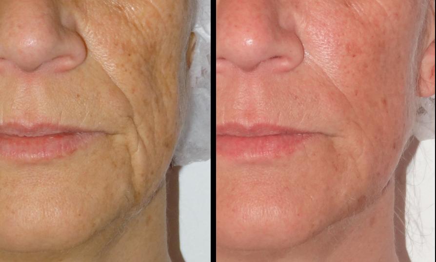photo avant-après du traitement d'un relachement du visage avec perte de volumes par combinaison d'injections et de laser