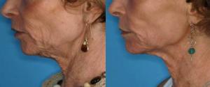 photo avant-après du traitement d'un relachement du visage par laser