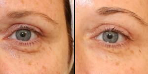 poches sous les yeux - on les enlève grâce au laser avec la blépharoplastie médicale, photos avant après
