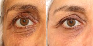Effacer les cernes au laser de rajeunissement: photos avant après