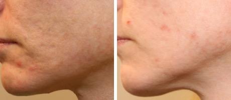 traitement des cicatrices d'acnée