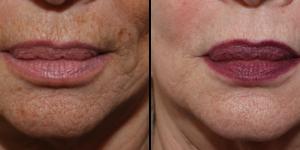 Rajeunissement au laser du contour de la bouche