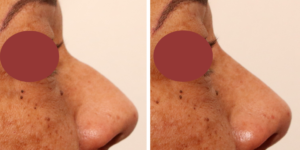 rhinoplastie medicale: injection d'acide hyaluronique du nez