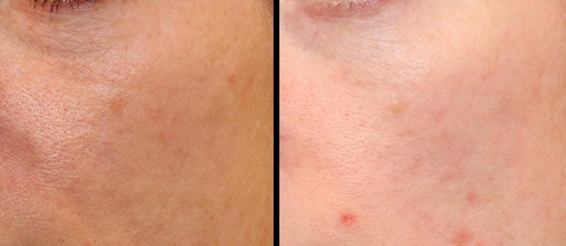 qualite de la peau photo avant-après laser de rajeunissement de la peau