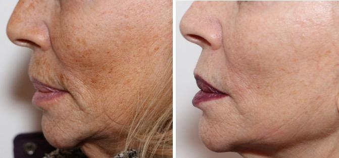 photo avant-après d'un visage de femme mûre traité par lasers de rajeunissement: effacement des rides et des taches, amélioration de la texture de peau