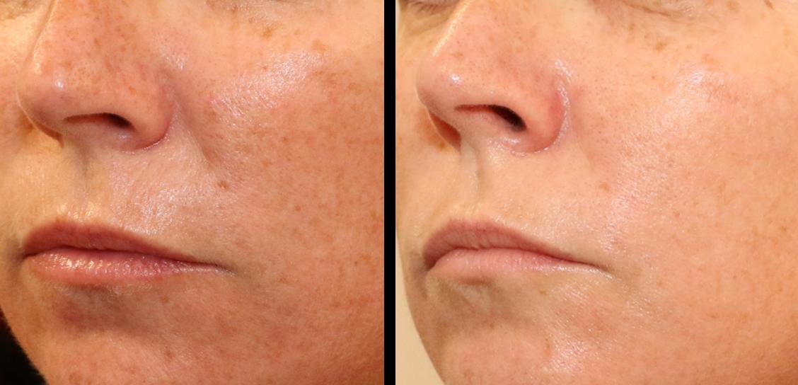 Laser de rajeunissement Erbium:YAG - photo avant-après: rentension et décreusement du sillon naso-génien