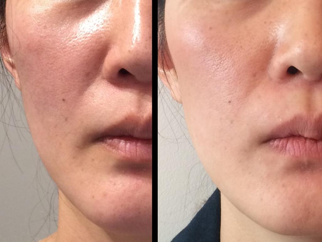 traitement des rides du sillon naso-genien avec le laser