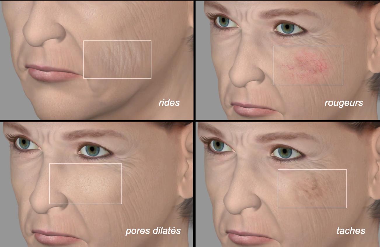 quatre images montrant chaque problème esthetique par theme: rides, rougeurs, taches, pores dilatés
